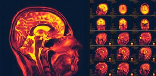 لدونة المخ العصبية – ما هي وما هي أهميتها؟