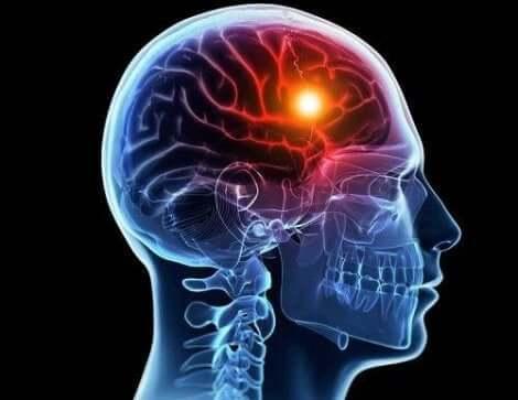 الانسداد الوعائي الدماغي