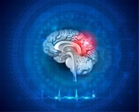 لدونة المخ العصبية