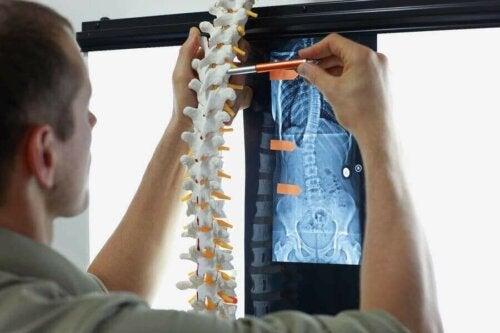 النقيلة العظمية - اكتشف معنا أعراض وعلاجات الحالة