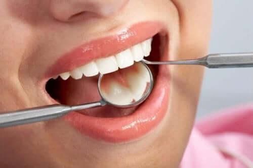 بكتيريا الأسنان