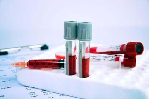 أنابيب اختبار فقر الدم