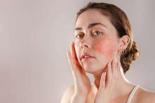 البشرة المتفاعلة - الأعراض والمسببات والعلاجات
