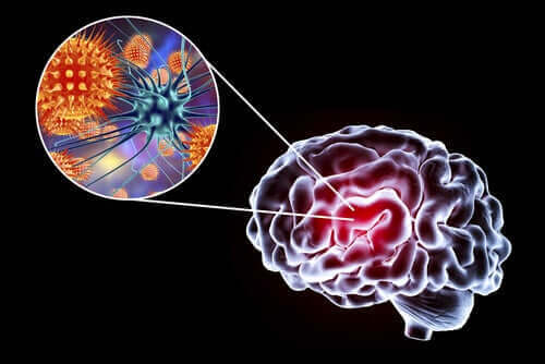 التهاب الدماغ: الأعراض، الأسباب، والعلاج