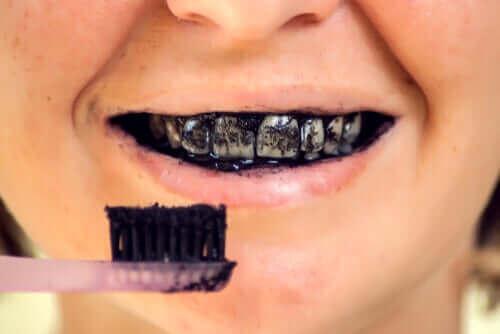مخاطر الفحم النشط على صحة الفم