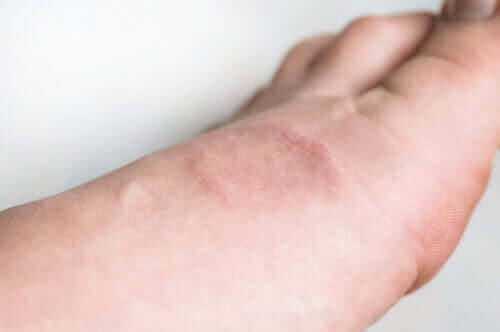 الورم الحبيبي الحلقي – ما هو وما هي أعراضه؟