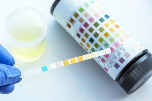 تحليل البول - فيما يُستخدم وما هي أنواعه؟