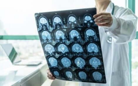 فحص الدماغ الدقيق