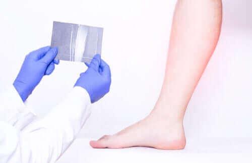 فحص تقلصات عضلات الساق