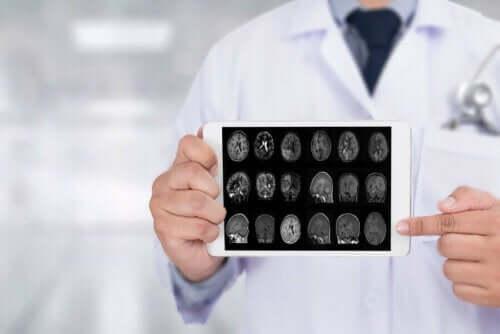 أشعة المخ