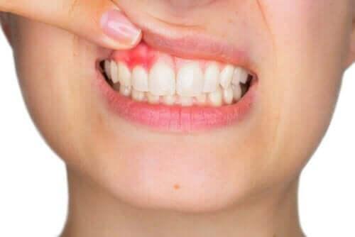أنسجة الفم والأسنان