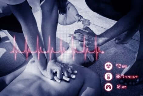 السكتة القلبية الرئوية