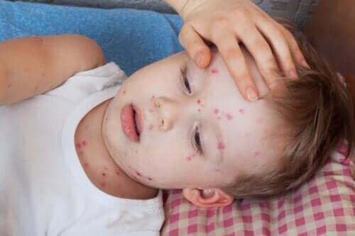 كيفية علاج حالة الشرى الجلدي لدى الأطفال