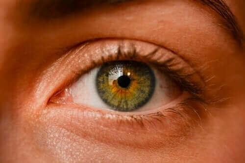 الوحمات العينية – هل تعد هذه البقع الداكنة خطيرة