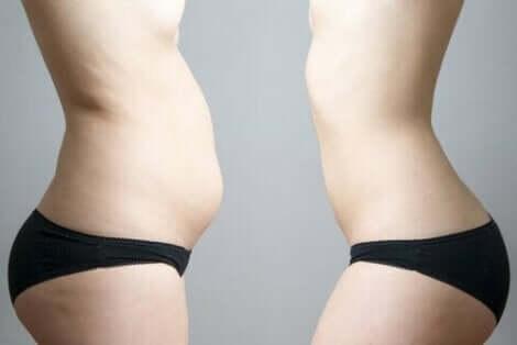 عملية إزالة الدهون بالتبريد