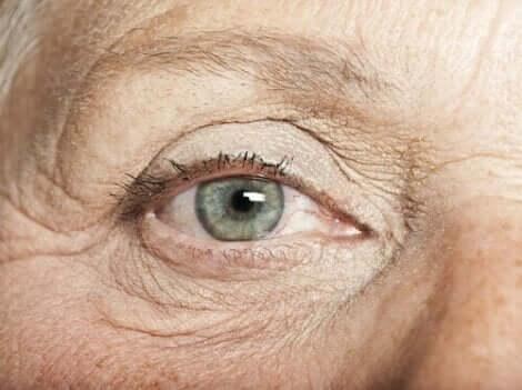 الوحمات العينية