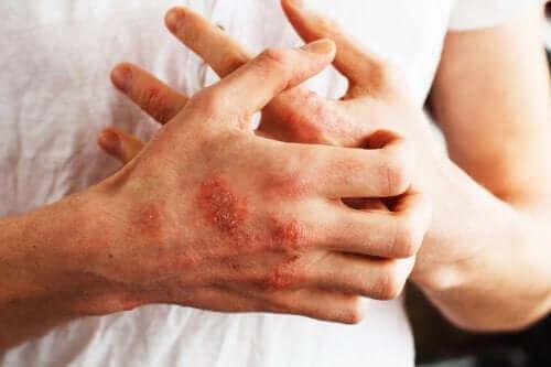 أطعمة يمكن أن تساعد السيطرة على أعراض مرض الصدفية