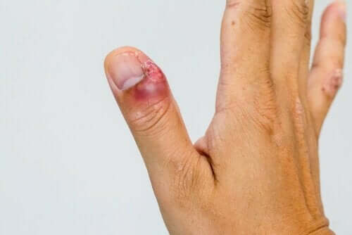 سمات وعلاجات حالة التهاب حول الظفر