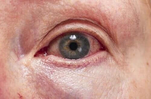 التهاب عنبية العين – كيفية تشخيص وعلاج الحالة