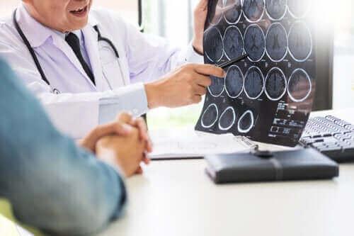 الغلوتين والأمراض العصبية