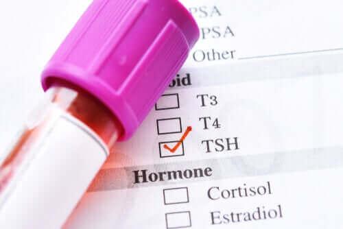 الهرمون المنشط للدرقية - ما الأسباب التي تؤدي إلى انخفاض مستوياته؟