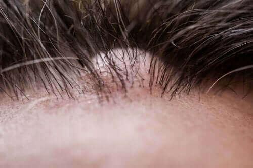 الورم الليفي الجلدي - سبب ظهوره، أعراضه وطرق العلاج