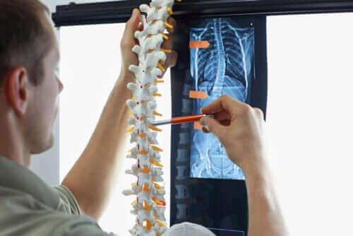 تمارين لتحسين وعلاج مرض الجنف أو انحراف العمود الفقري