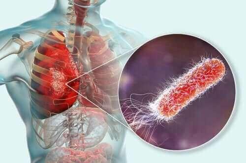 هل توجد بكتيريا في الرئتين؟