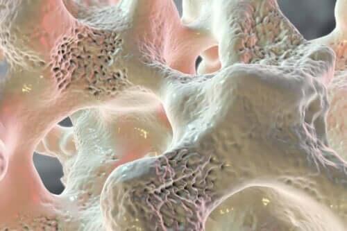 نقص الكالسيوم يؤدي إلى هشاشة العظام