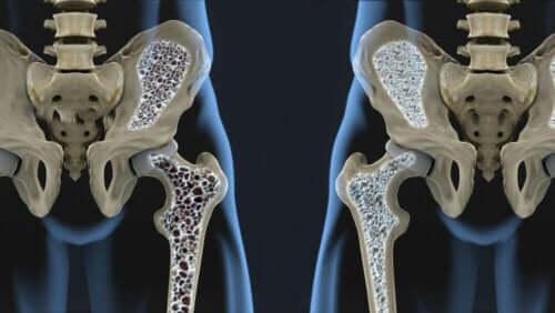 عوامل خطر هشاشة العظام