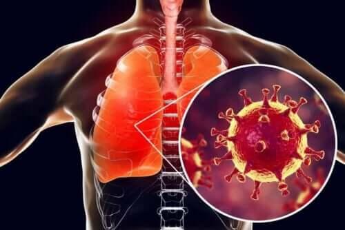 أنواع التهاب الشعب الهوائية