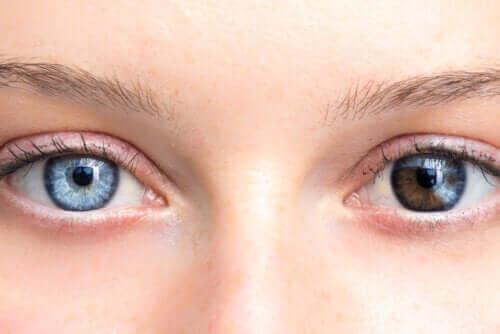 تغير لون العين - ما الذي يشير إليه؟ وما الأمراض المرتبطة بالظاهرة؟