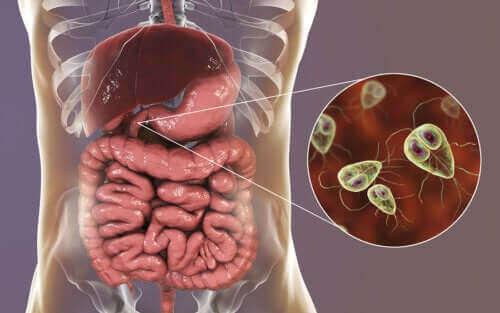 داء الجيارديات - الأعراض وطرق العلاج