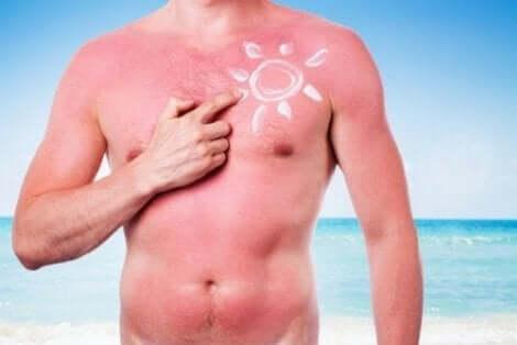 الشمس وصحة البشرة