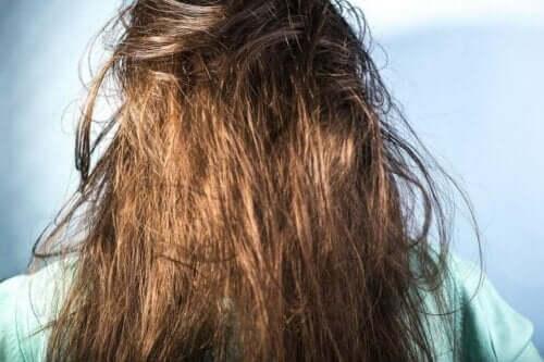 ما مسببات ظهور الشعر الدهني؟