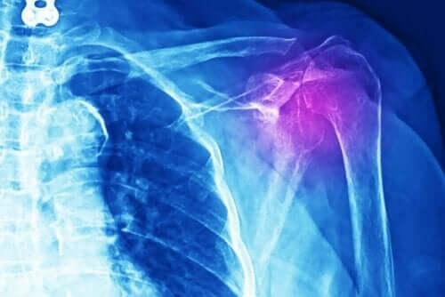 أشعة سينية لحالة التهاب أوتار الكتف