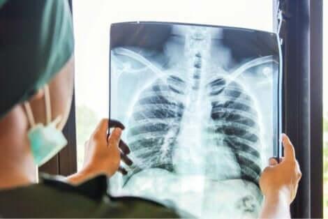 التعافي بعد جراحة زراعة الرئة