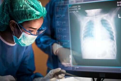 جراحة زراعة الرئة - كل ما تحتاج إلى معرفته عنها