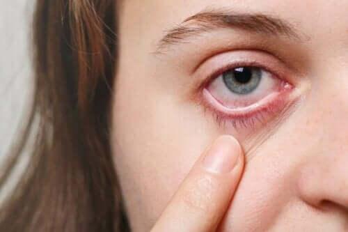 5 علاجات فعالة للتعامل مع أنواع عدوى العين