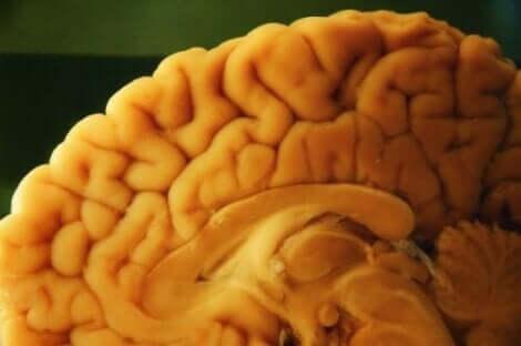 خطوات تقنية التشريح العصبي