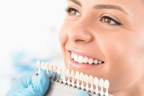 تبييض الأسنان - وصف وأنواع العمليات المختلفة المتاحة
