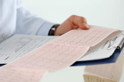 رسم القلب واستخدامه في تشخيص عدم انتظام ضربات القلب