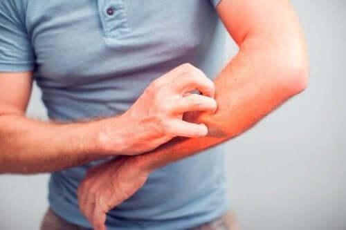 علاجات ووصفات طبيعية من أجل تهدئة مشكلة الحكة أو الهرش