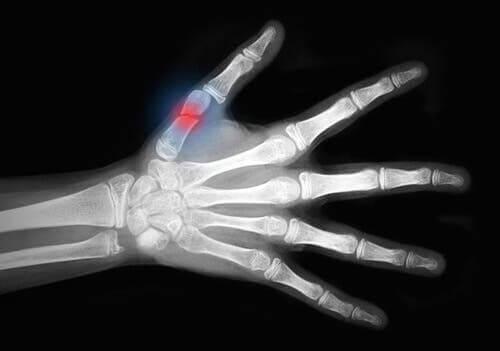 أشعة لكسر بعظام الإبهام كمثال على إصابات اللحب